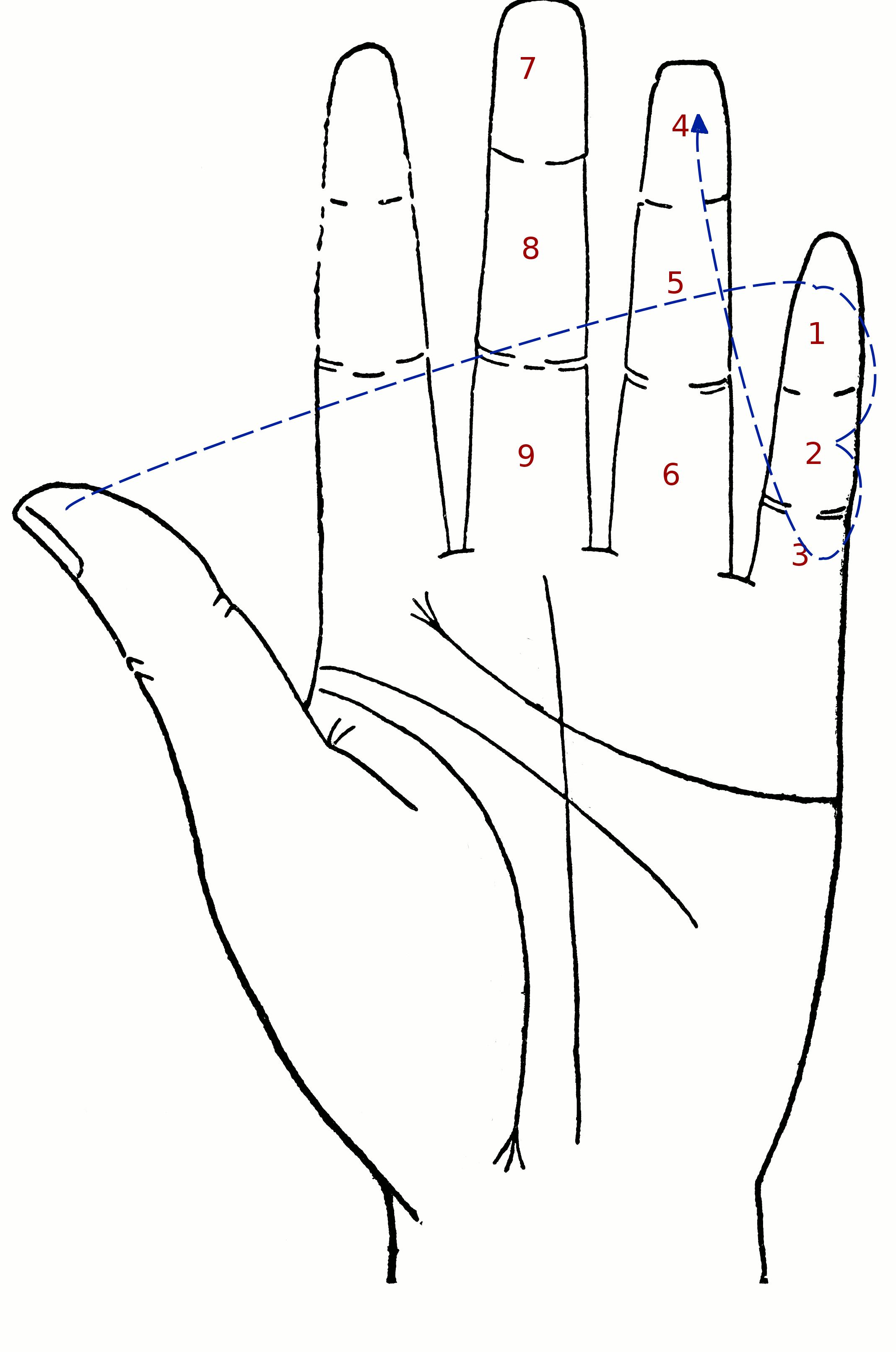 left hand diagram | Diarra